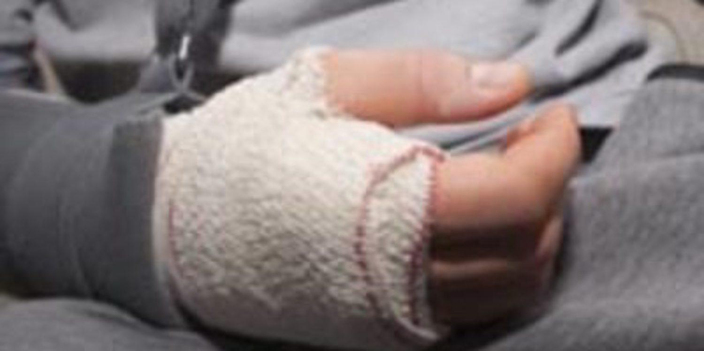 Stefan Bradl se opera en Barcelona de su brazo derecho